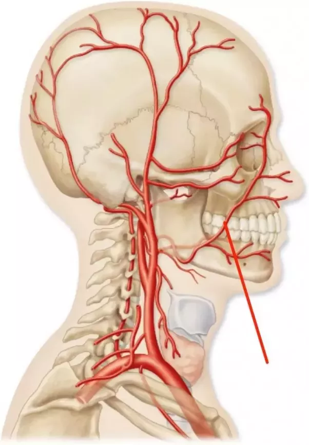 Which artery is the easiest to sever? - Quora