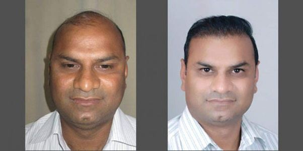 Best Affordable Cost Of The Procedure And Pioneer Hair Transplant Surgeon Dr Suneet Soni Perform Is A Token Urance To Get