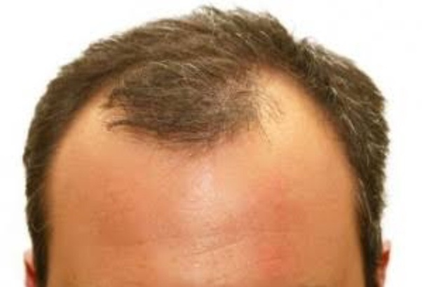 how to grow hairline naturally