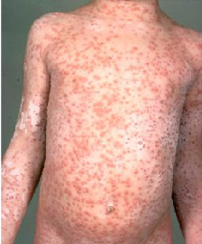 adult pox Shingles chicken