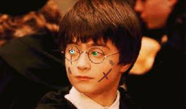 Why did nobody notice that Harry Potter was mistreated at