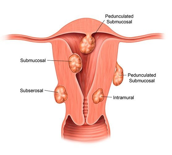 Is there any treatment possible for a fibroid in homeopathy