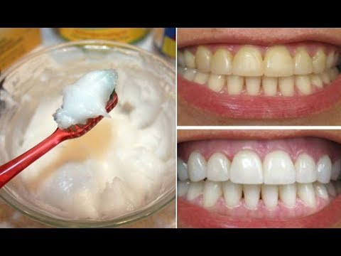 How To Naturally Whiten My Teeth Quora