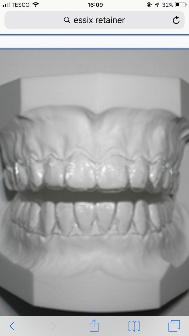 What is the best kind of dental retainer to use? - Quora