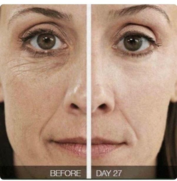 best treatment for fine lines under eyes