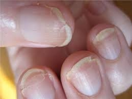 What causes nails to split? - Quora