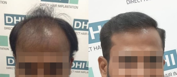 Which is the best hair transplant clinic in India? - Quora