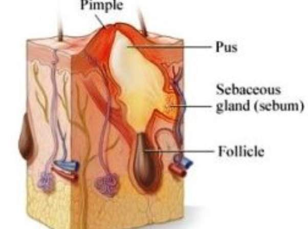 How To Get Rid Of Acne Bumps Quora