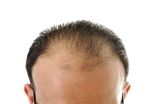hair loss facial Propecia