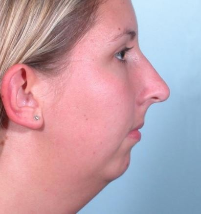 How to get rid of a receding chin - Quora