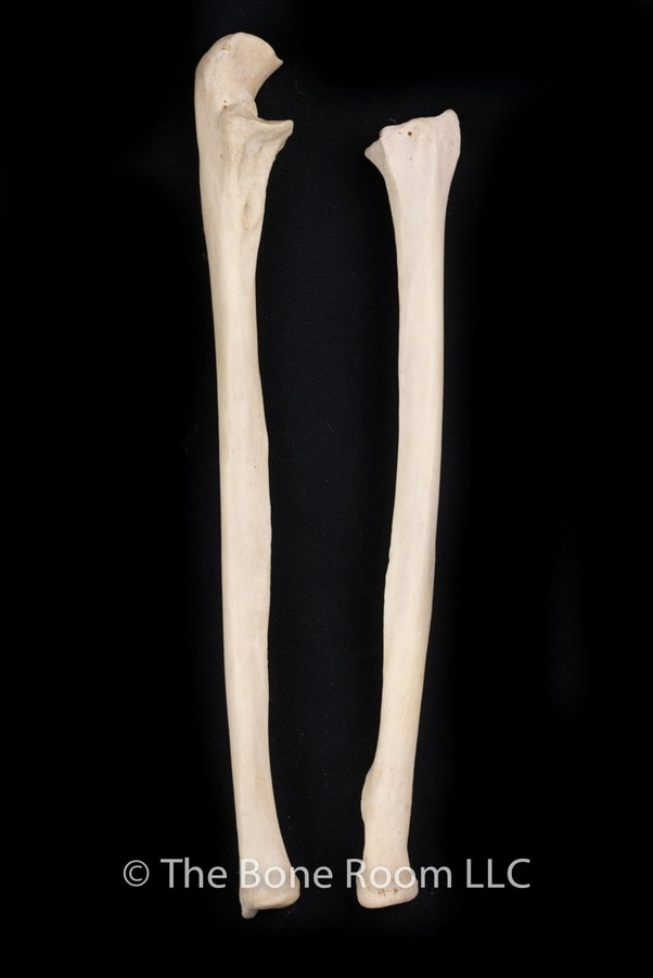 How to differentiate the ulna and the radius bones in a ... Ulna Bone