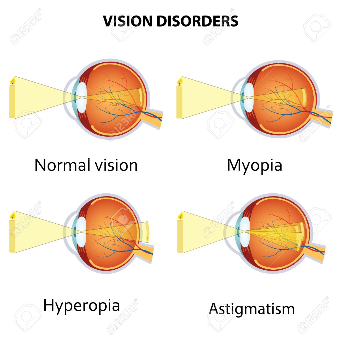 mi a hyperopia és a myopia