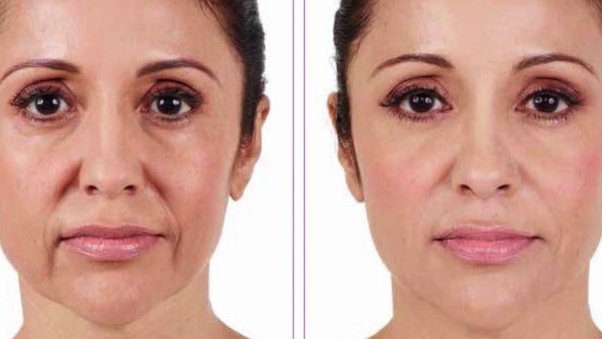 What is better -- Botox or Juvederm? - Quora