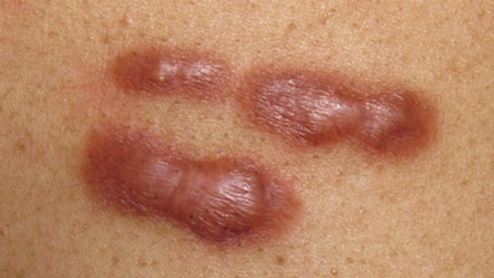 How To Cure My Keloid Which Formed After A Cyst Surgery Quora