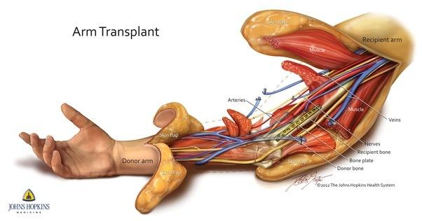 Do Arteriesveins Run Inside Muscles Quora
