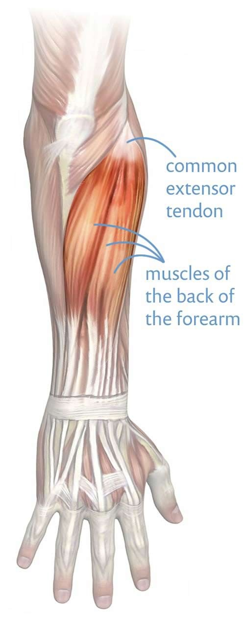 How to cure tennis elbow - Quora