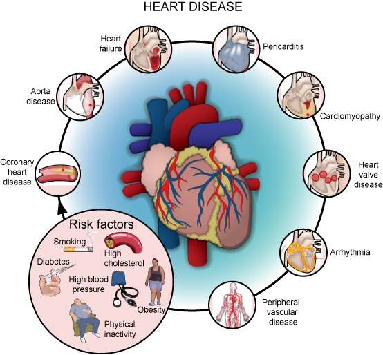 what are the types of coronary artery disease