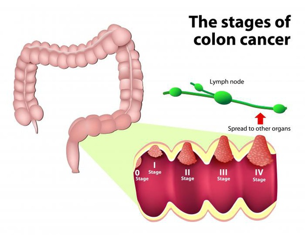 What Is Colorectal Cancer How Does Colorectal Cancer Start And Spread Quora