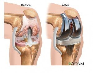 Who is the best orthopedic surgeon in india for total knee dr manoj todkar is the best knee joint replacement surgeon in pune knee replacement surgery can be performed as a partial or a total knee replacement ccuart Choice Image