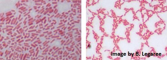 e coli under microscope - photo #20