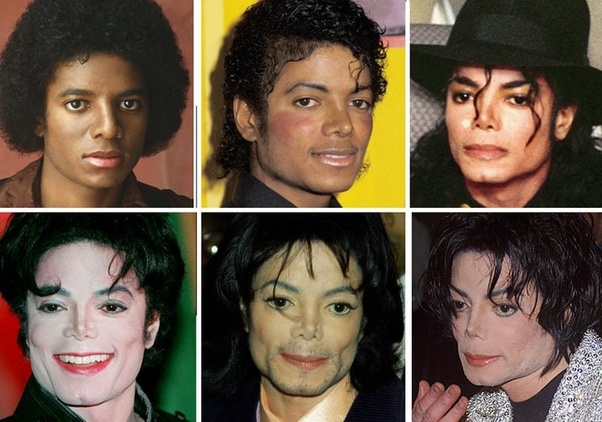 What is the name of Michael Jackson's plastic surgeon? - Quora