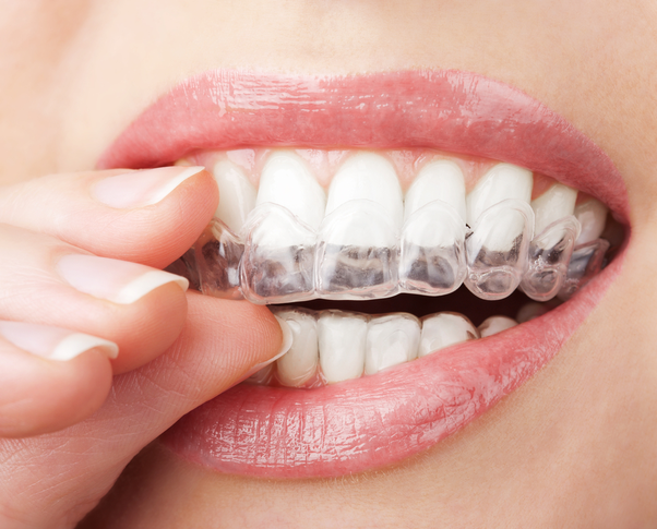 Dentistry How Much Rupees Yellow Teeth Whitening Costs Quora