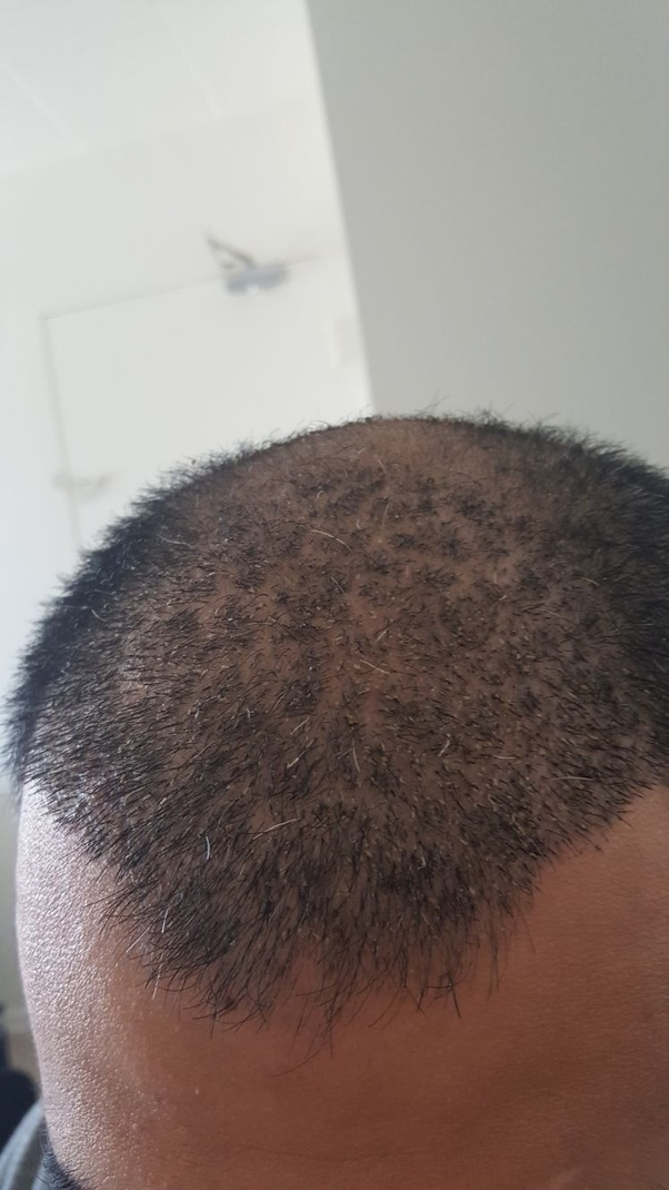 When Can You Cut Your Hair After Fue Quora