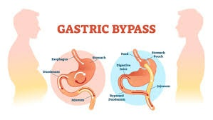 what qualifies you for gastric bypass surgery
