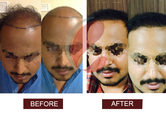 Hair transplant cost in india quora
