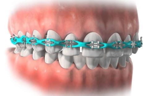 Can dental braces help close up a gap left by a missing ...