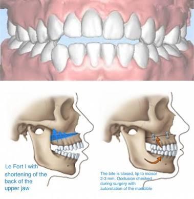 What causes anterior open bite