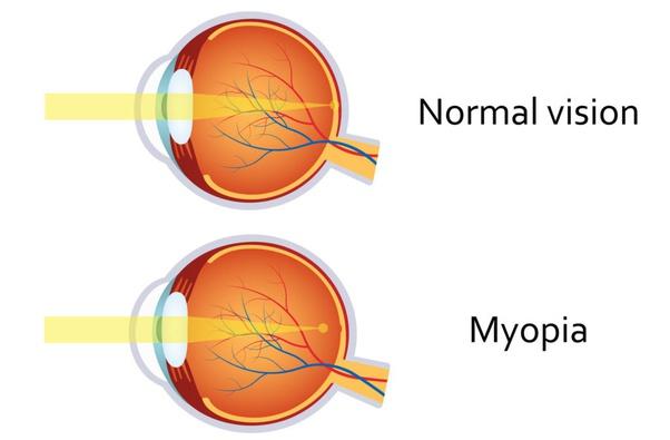 myopia 2 dioptria mennyi gimnasztika hyperopia és astigmatizmus esetén