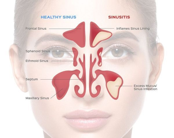 what are the symptoms of sinusitis quora