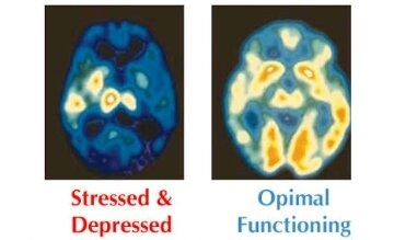 Can damage caused by extreme stress be seen in a brain ...