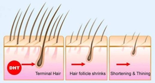 Can high DHT levels be the reason for hair loss in a