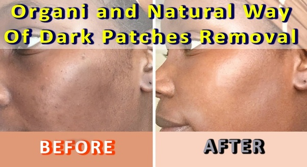 Hello friends, today I am going to tell you in this post that how you can remove Dark Patches and Dark Spots from your face.