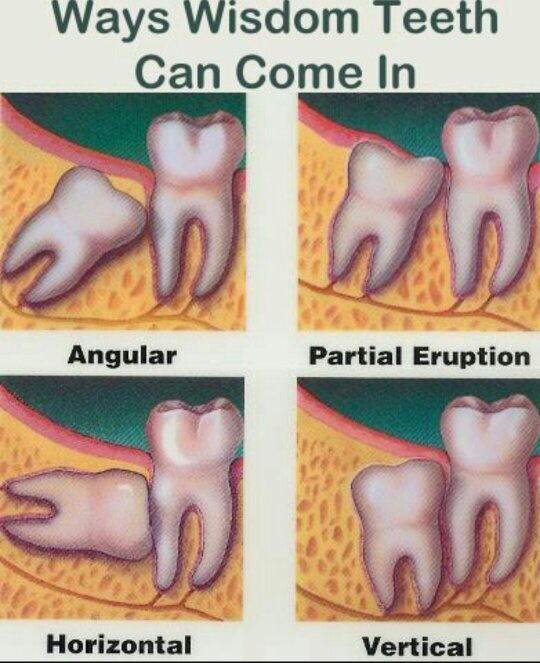 How To Tell If Your Wisdom Teeth Are Coming Throughgolkes