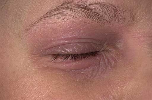 Natural Eczema Eye Treatment