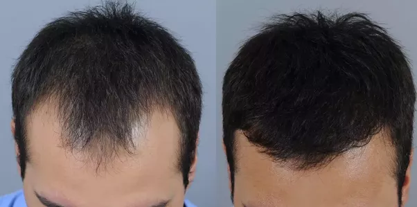 Hair transplant in pune quora