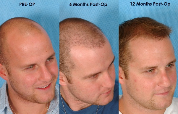 Which Hair Transplant Is Better Fut Or Fue Quora