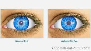 how to read eye prescription astigmatism