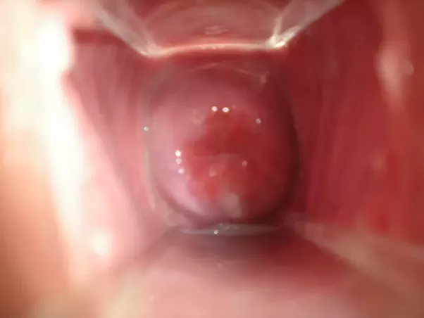 My Vagina Looks Like A Penis