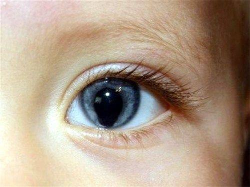 What Is A Coloboma In The Eye Quora
