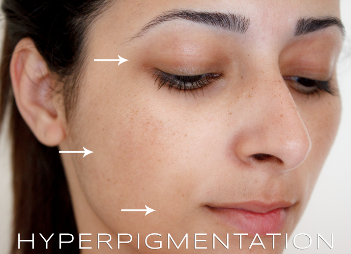 What are the best medicines for dark spots on the face? I have been