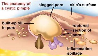 What is recommended to do with zits that wont pop quora the spread of bacteria under the skin can cause new spots to pop up in the surrounding tissue ccuart Gallery