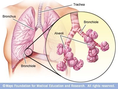 Bad Lung Diagram - Block And Schematic Diagrams •
