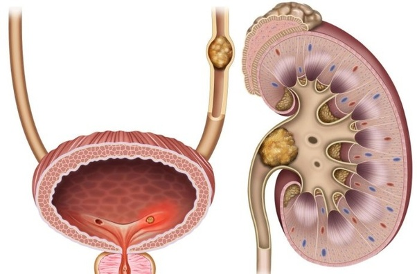 Which Type Of Surgery Is Best For A Kidney Stone Quora