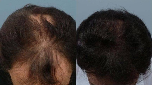 Why Doesn T The Combo Of Dutasteride And Minoxidil Hault Hair Loss Hairlosstalk Forums
