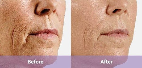 What Is Better Botox Or Juvederm Quora