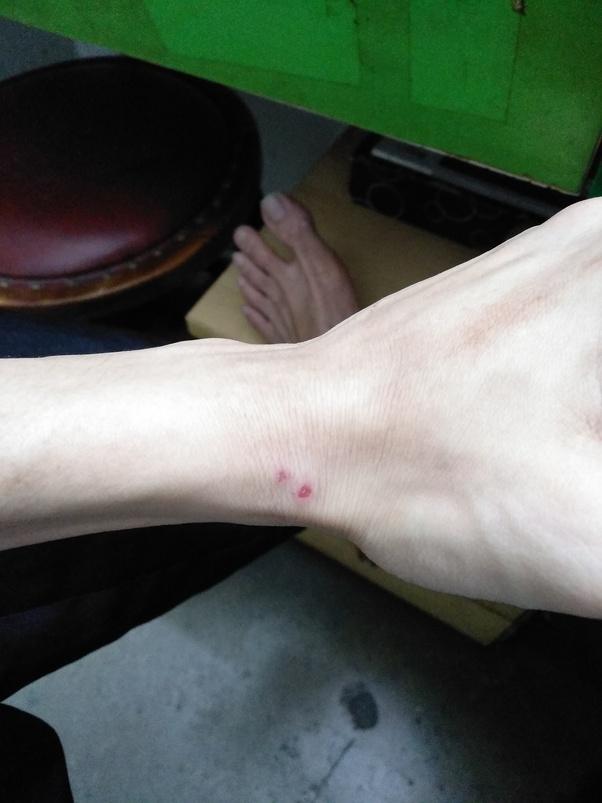 Does Bleach Kill Ringworm Quora